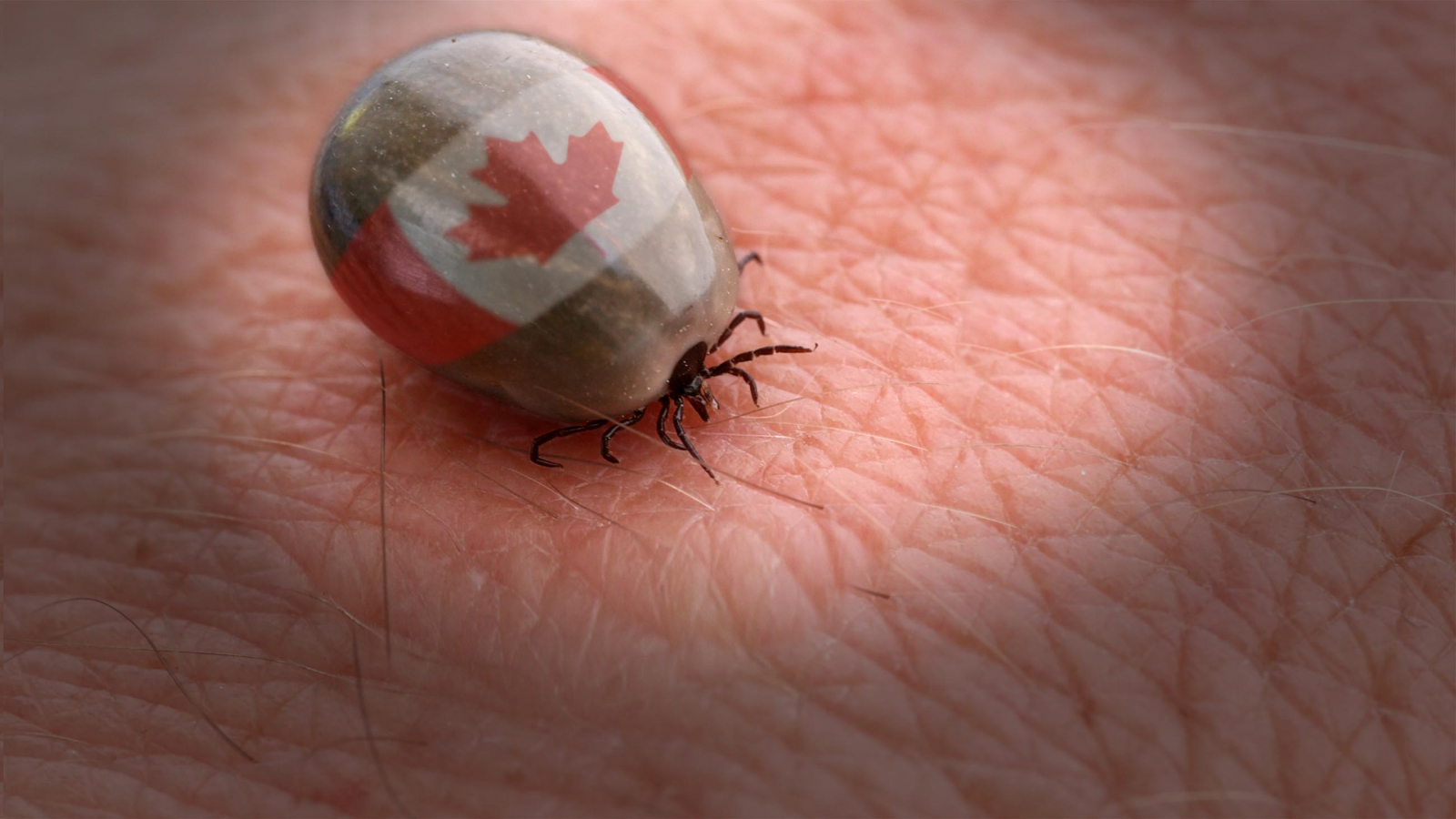 Ticks creep Into Canada, bringing lyme disease (and