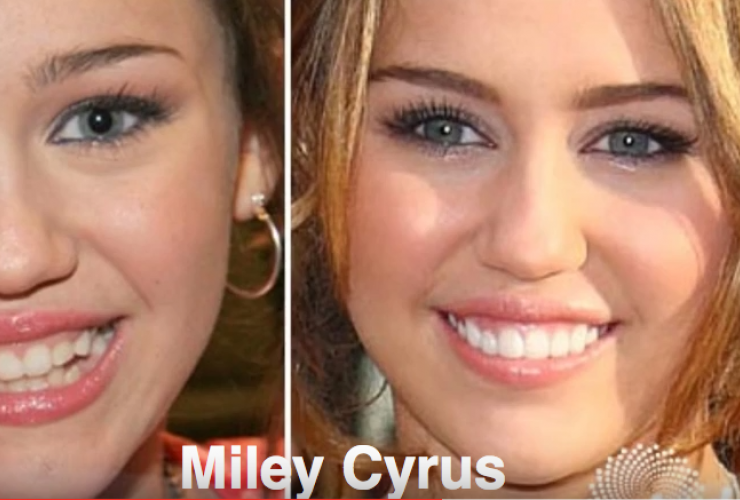 Miley Cyrus's purported plastic surgery transformation