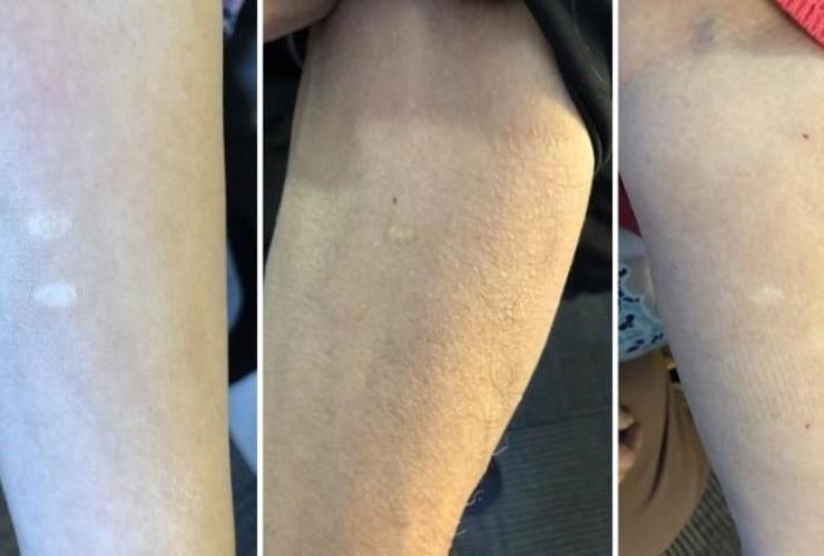 scar, skin graft, arm, Paul Quassa,