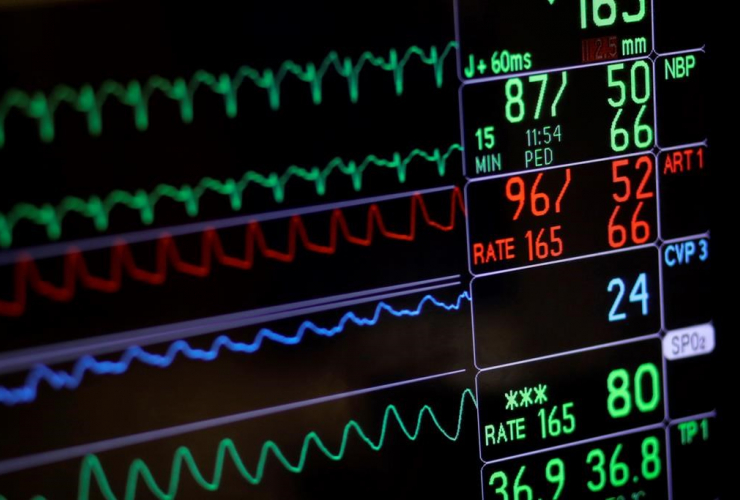 screen display, patient, vital signs, open heart surgery, University of Maryland Medical Center, Baltimore,